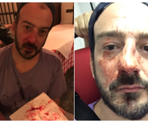 Guillaume Mélanie, président de l'association Urgence Homophobie, violemment agressé à Paris.